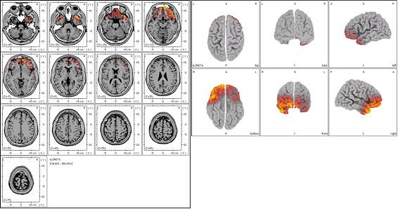 Tomografía Eléctrica Cerebral en paciente con comienzo de Enfermedad de Alzheimer