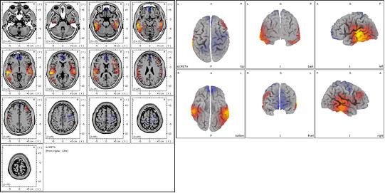 Tomografía Eléctrica Cerebral en paciente con lesiones vasculares cerebrales