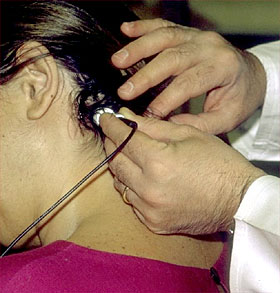 ecodoppler de la arteria vertebral
