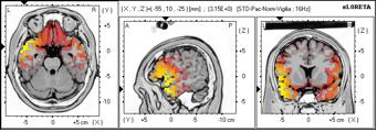 Variación ritmo cerebral
